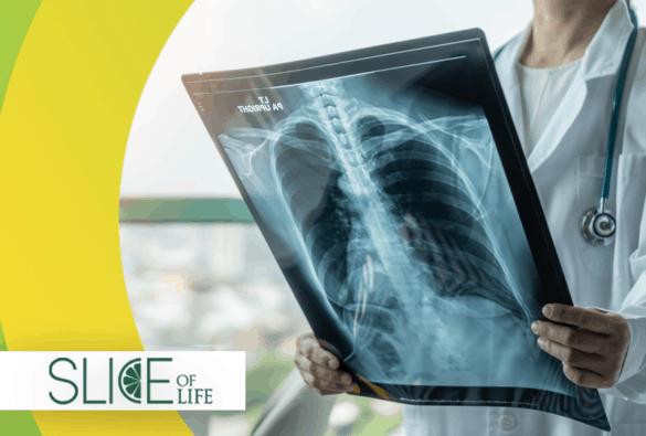 Trivia Tuesday - X-ray